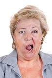 Fazialislähmung - schiefes Schreien Stockbild