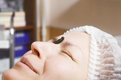 Fearful of leech. Caucasian woman face fearful of medicinal leech laying down on her forehead. Hirudotherapy helps to gain better blood flow and circulation royalty free stock photos
