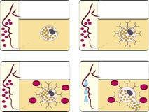 Febre de feno da alergia ilustração do vetor