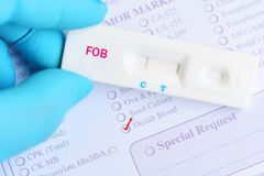 Fecal occult blood test negative by using rapid test cassette. Colorectal cancer diagnosis royalty free stock photos