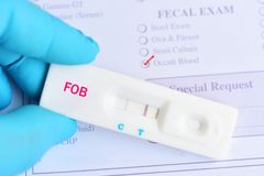 Fecal occult blood test positive. By using rapid test cassette, colorectal cancer diagnosis stock photography