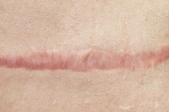 Feche acima da cicatriz cyanotic do keloid causada pela cirurgia e suturar, as imperfei??es da pele ou os defeitos Cicatriz Hyper fotografia de stock royalty free