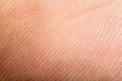 Feche acima da pele humana. Epiderme macro Foto de Stock Royalty Free