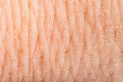 Feche acima da pele humana. Epiderme macro Imagens de Stock