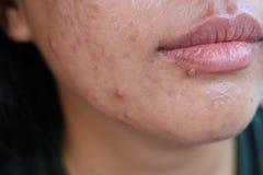 Feche acima da pele que as jovens mulheres asiáticas são acne, pele facial da cara, acne, cicatrizes obstruídas causadas pela  fotografia de stock royalty free