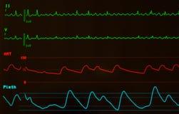 Feche acima da vibração Atrial no monitor com tela preta fotos de stock royalty free