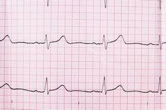 Feche acima de um eletrocardiograma no formulário de papel Fotografia de Stock Royalty Free