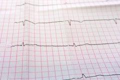 Feche acima de um eletrocardiograma no formulário de papel imagem de stock royalty free
