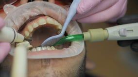 Feche acima de um polimento dental profissional na clínica video estoque