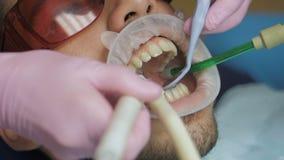 Feche acima de um polimento dental profissional na clínica vídeos de arquivo