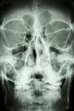 Feche acima do crânio do asiático (os povos tailandeses) Imagem de Stock