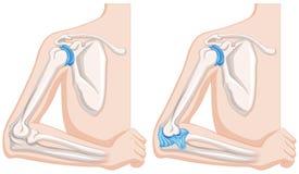 Feche acima do diagrama de junções de cotovelo humanas ilustração do vetor