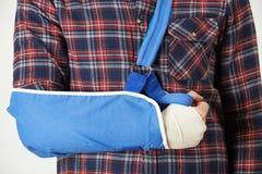 Feche acima do homem novo com o braço no estilingue Imagem de Stock