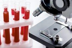 Feche acima do microscópio macro com a amostra de sangue no fundo branco foto de stock royalty free