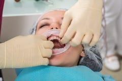 Feche acima do processo de preparar e de instalar a coroa cerâmica dental O dentista profissional masculino ajuda a tratar os den imagens de stock