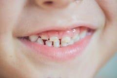 Feche acima do tiro dos dentes de bebê com cáries foto de stock royalty free