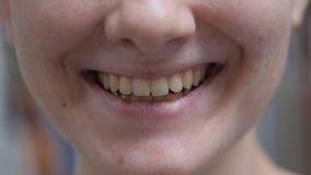 Feche acima dos bordos e dos dentes fêmeas novos de sorriso fotografia de stock royalty free