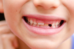 Feche acima dos dentes de leite faltantes de sorriso da boca da criança Imagens de Stock