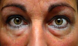 Feche acima dos olhos tired da mulher Fotografia de Stock