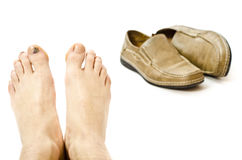 Injuried feet Stock Images