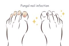 Feet with fungal nail infection vector illustration