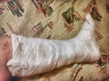 Feet. Leg in plaster Stock Images