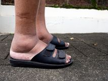 The feet of man with diabetes, dull and swollen. Due to the toxicity of diabetes Stock Photos