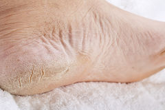 Feet that need a pedicure stock images