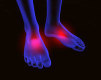 Feet and pain 2. 3d image of feet with red pain royalty free illustration