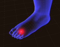 Feet and pain 3. 3d image of feet with pain vector illustration