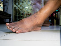 The feet of people with diabetes, dull and swollen. Stock Photography