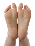 Feet, plantar warts, skin disease, dermatology Stock Photos