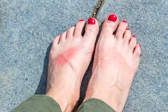 Feet of woman with abrasions and sunburn and red colored tough stock photos