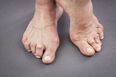 Feet Of Woman Deformed From Rheumatoid Arthritis Stock Images