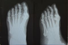 Feet X ray Royalty Free Stock Images
