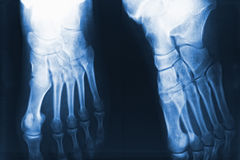 Feet xray Royalty Free Stock Images