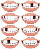 Fehlende Zahn-Reihe Lizenzfreies Stockfoto