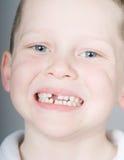 Fehlender vorderer Zahn Lizenzfreies Stockfoto
