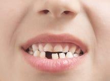 Fehlender Zahn stockbild