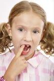 Fehlender Zahn des Mädchens stockbild