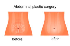 Female abdomen before and after abdominoplasty Royalty Free Stock Image