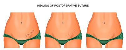 The female abdomen. healing joint after appendectomy. Vector illustration of female abdomen. the healing of the seam after appendectomy Vector Illustration