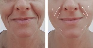 Female adult wrinkles removal dermatology contrast lift filler patient difference before and after procedures, arrow. Female adult facial wrinkles before and royalty free stock photos