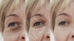 Female adult facial wrinkles rejuvenation treatment mature patient difference before and after cosmetic procedures, arrow. Female adult facial wrinkles before stock photography