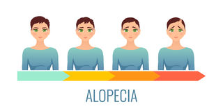 Female alopecia stages set. Stock Images