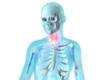 Female Anatomy - Throat ache Royalty Free Stock Photo