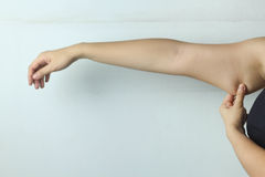 Female Arm with cellulite Royalty Free Stock Photography