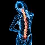 Female back pain Royalty Free Stock Photo