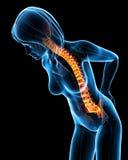 Female back pain Stock Photography