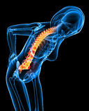 Female back pain Royalty Free Stock Photos